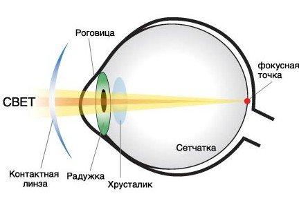 Мутнеет зрение на одном глазу