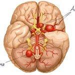 Аневризма: психологические причины и лечение