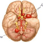 Аневризма сосудов мозга: психологические причины и лечение