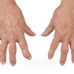 Основные психологические причины артрита