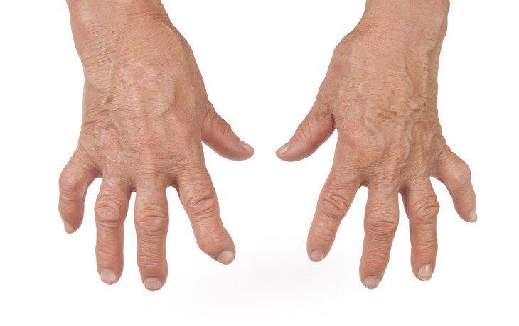 психологические причины артрита