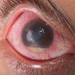 Как лечить глаукому без лекарств: разбираем психологические причины болезни