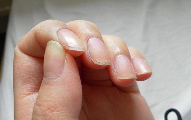 слоятся ногти чего не хватает в организме