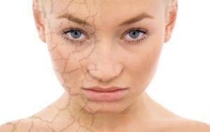 Сухая кожа: чего не хватает в организме человека