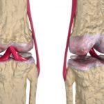 Что можно и нельзя есть при артрозе суставов