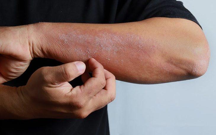 что нельзя есть при аллергическом дерматите взрослому