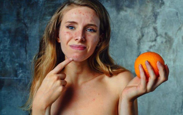 что можно есть при аллергии на мандарины