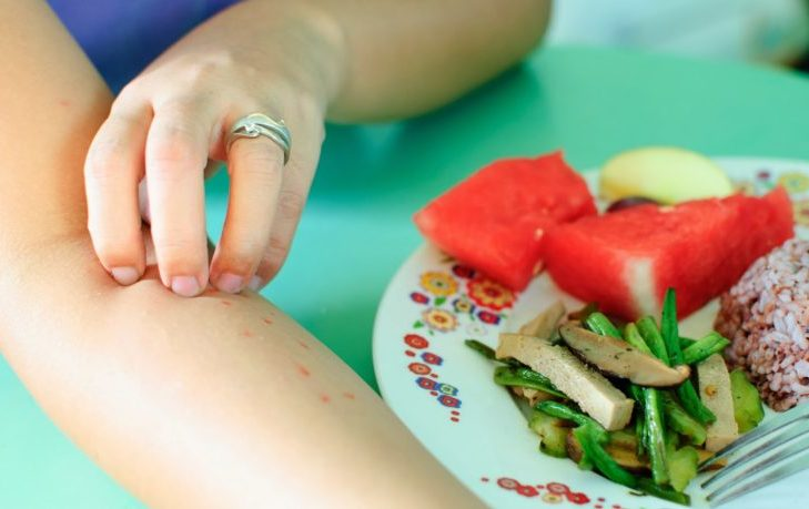 что нельзя есть при пищевой аллергии