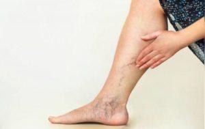 Что можно и нельзя есть при варикозе вен на ногах