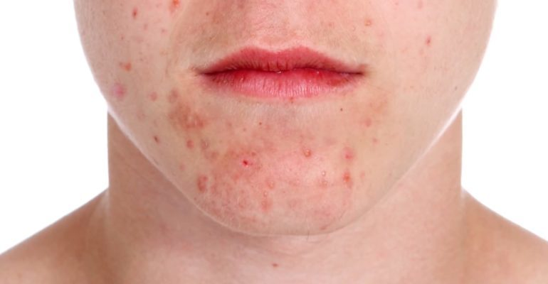 что можно есть при дерматите на лице