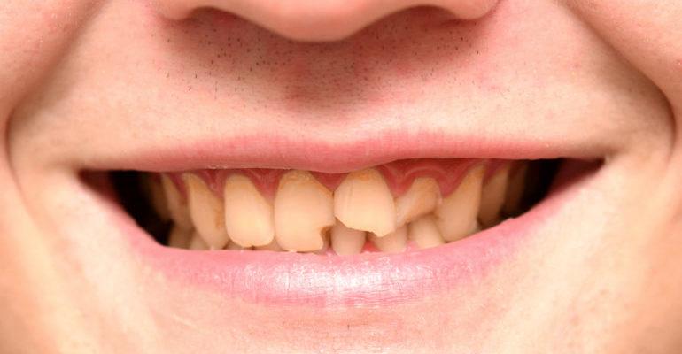 крошатся зубы почему