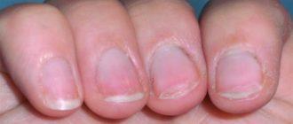 трескаются ногти почему