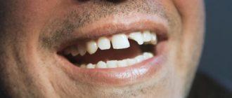 сыпятся зубы причины