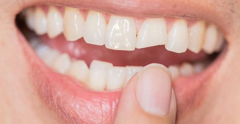 разрушаются зубы почему